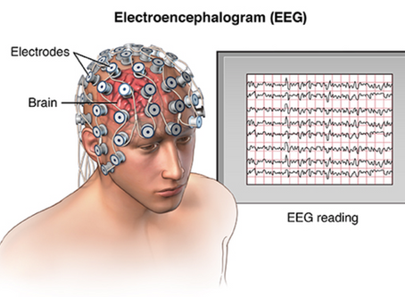 A next-gen EEG could help restore lost brain function