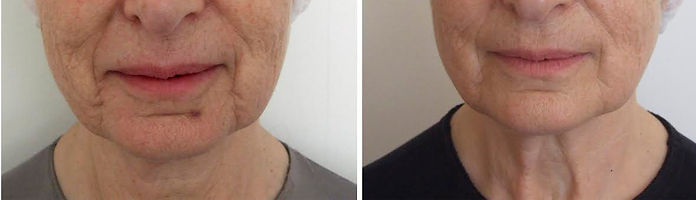 Cosmetic acupuncture for facial rejuvenation treatment results before and after anti-aging, Atopic dermatitis treatment results with acupuncture, EsTherapy Acupuncture facial rejuvenation, Orthopidic aches and pains, saggy skin treatments, acupuncture los angeles, acupuncture beverly hills, acupuncture treatment los angeles, cosmetic acupuncture los angeles, wrinkles, acne, atopic dermatitis, Menopause symptoms such as, night sweats, hot flashes, night thirst, and difficulty sleeping, cellulite treatments