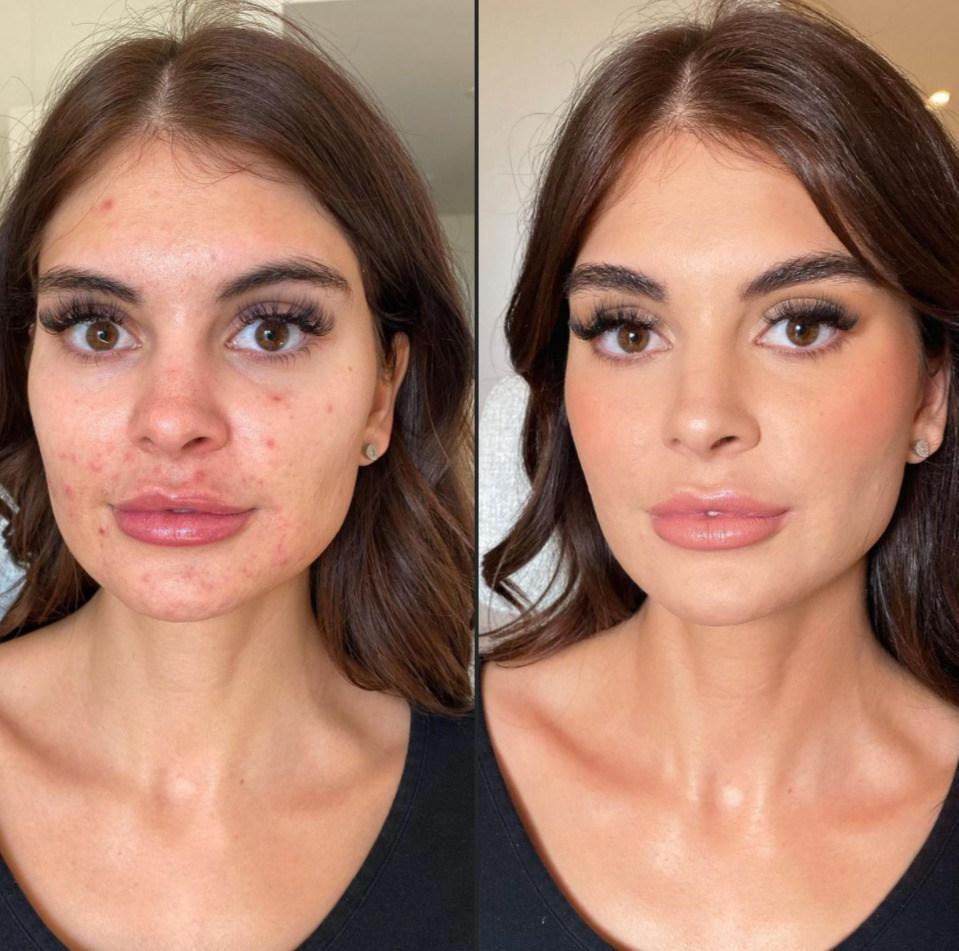 makeup for akne i københavn