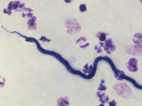 Neglected Tropical Disease Highlight: Onchocerciasis