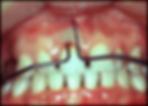 teeth 1.png
