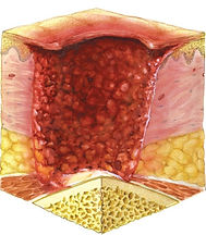 Foot ulcer image cross section (2).jpg