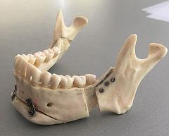 Zahnarzt Dysgnathie Praxis für Zahngesundheit Böbling Beratung Dr.Wagner Dr. Goldamme Zahnarzt Kaufunktion Kieferfehlbestellung Therapien  Zahnschmerzen Kieferschmerzen