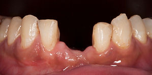 前歯が無い インプラント治療前 香港