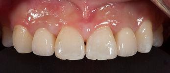 前歯が無い インプラント治療 香港
