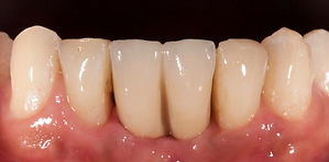 Replace lower teeth