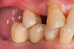 Implants back teeth