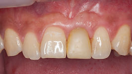 Dental Implant crown Hong Kong Central