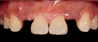 Crowning front teeth