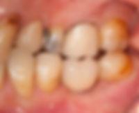 歯のかぶせ物治療後 歯医者香港