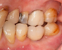 Tooth and implant crowns