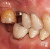 Multiple molar implants