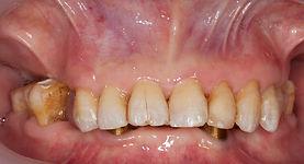 歯が無い 治療前 香港
