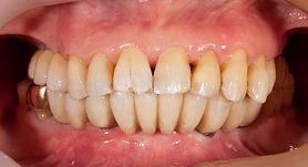 歯が無い 治療 香港