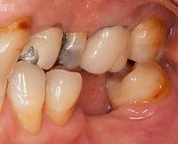 歯のかぶせ物 治療前 香港歯医者