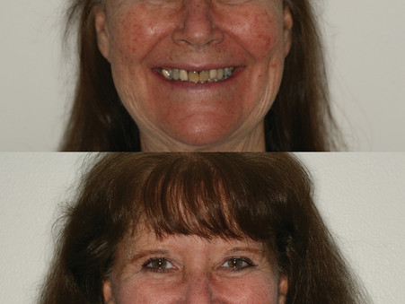 Long-lasting, Natural-looking Implants Give People Reason to Smile