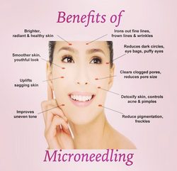 Microneedling Benefits