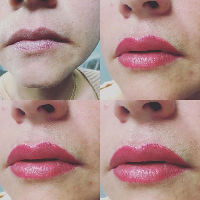 Correction of 10 year old lip color