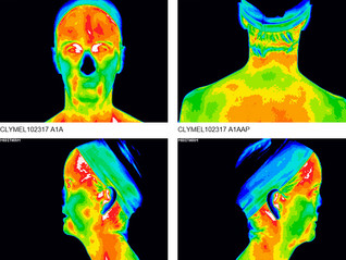 Is Thermography Right for You?  Part 3