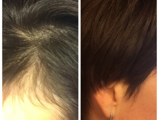 Essential Oils for Hair Growth?