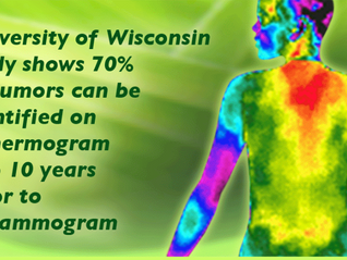 Is Thermography Right for You?