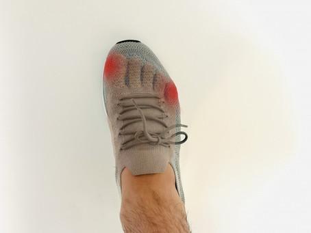 足の健康と靴の関係②ゆとりのある靴の危険性