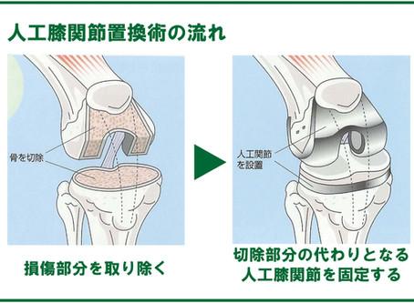 人工膝関節②手術の流れと種類