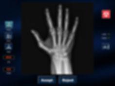 PatientSide-Hand-Xray.jpg
