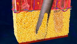 Аспирация жировой ткани