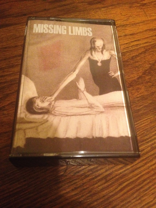 Missing Limbs - s/t