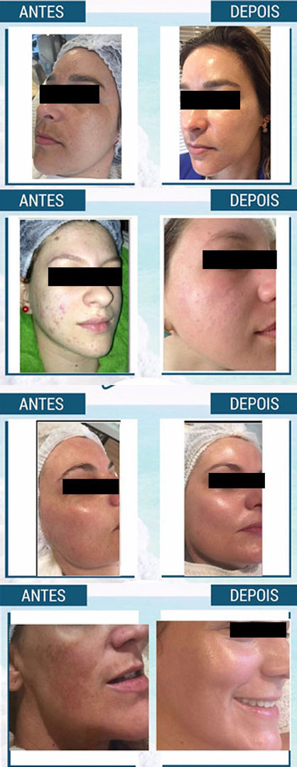 peeling do mar morto