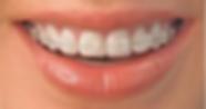 appareil dentaire orthodontiste lyon