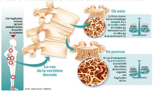 On prévient l'ostéopénie, et l'ostéoporose