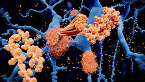 Protein Birikimi ve Nörodejeneratif Hastalıklar