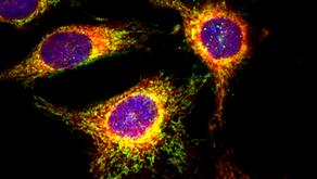 Endoplazmik Retikulum (ER) Stresi ve Katlanmış Protein Yanıtı (UPR)