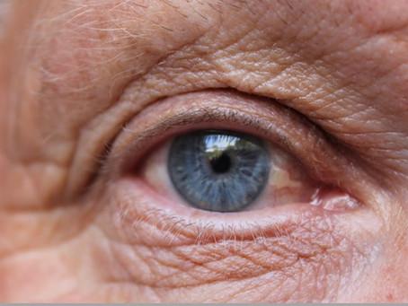 Yaşa Bağlı Makula Dejenerasyonu (Sarı Nokta Hastalığı), Risk faktörleri ve Tedavide Mikronutrisyonun