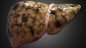 Non Alkolik Yağlı Karaciğer Hastalığı