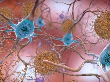 Nöroinflamasyon ve Nörodejenerasyon