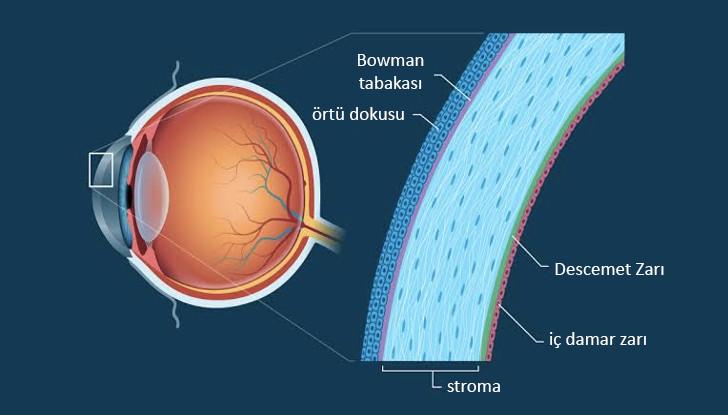 Şekil 1: Kornea gözün en dışında saydam tabakadır ve sağlıklı bireylerde kornea merkezde ortalama 500 mikron kalınlığındadır. [18]