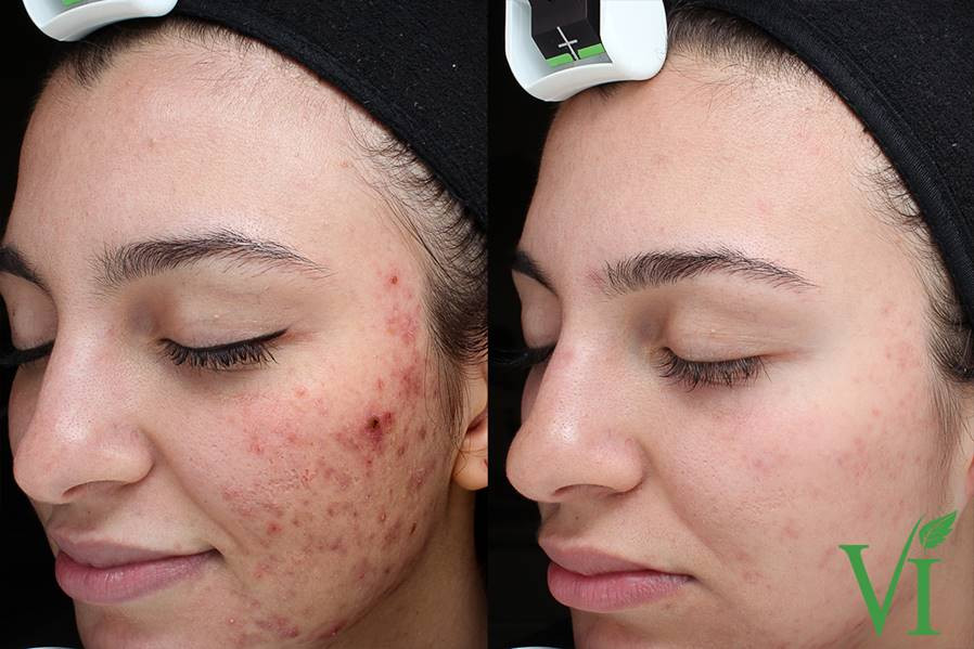 ViPeel for Acne