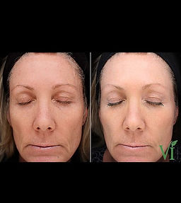 ViPeel for facial rejuvenation...helps w