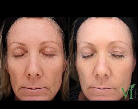 ViPeel for facial rejuvenation