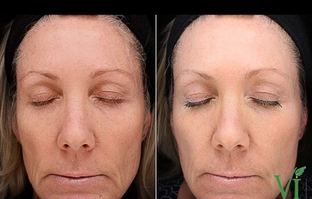 ViPeel for facial rejuvenation
