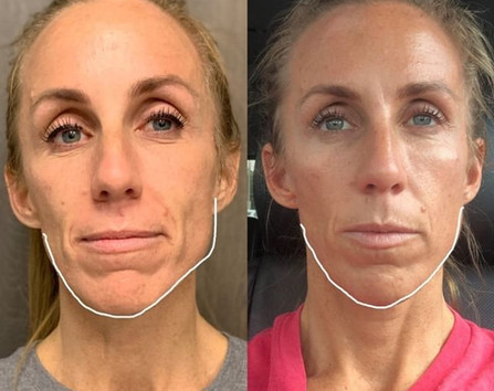 Botox for facial slimming and masseters