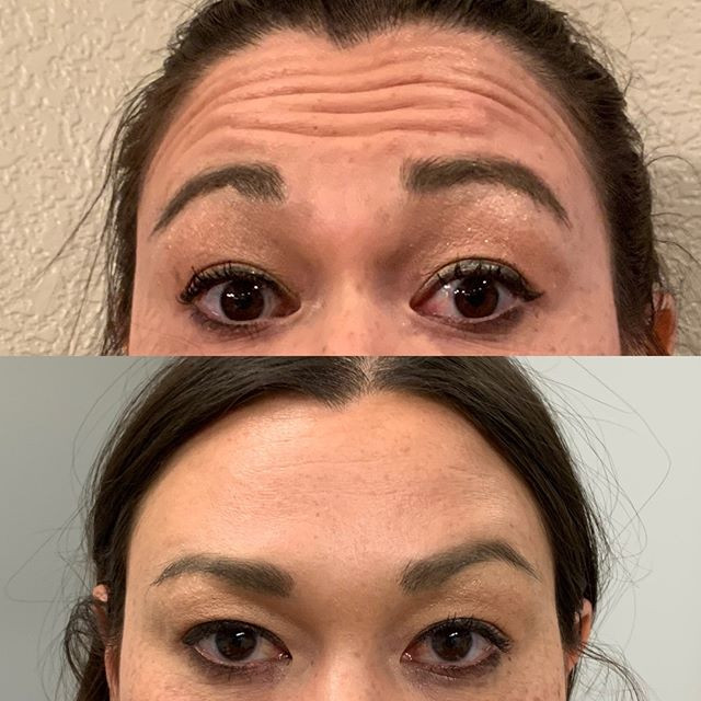Botox for forehead lines