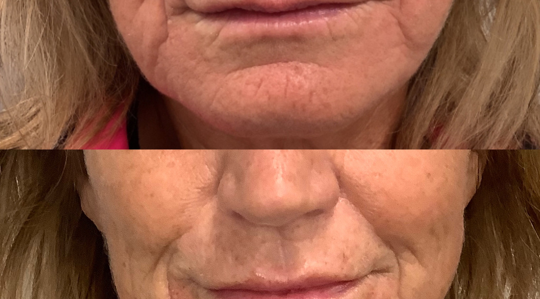 Lip filler and skin strengthing with filler