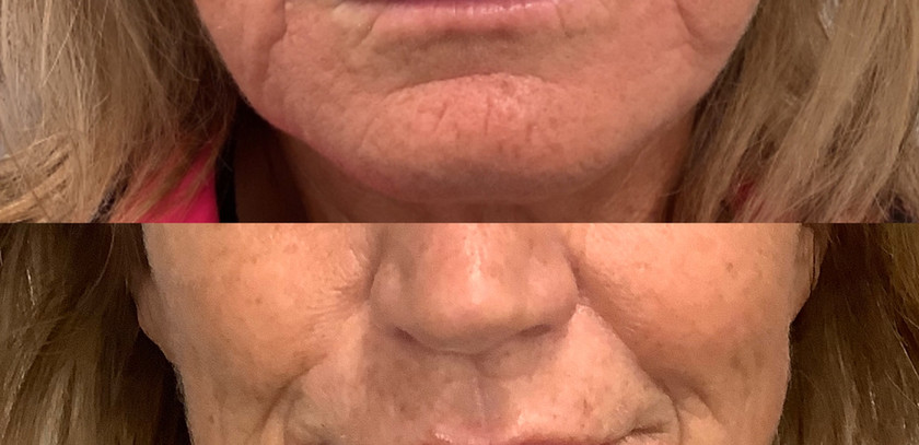 Lip filler and skin strengthing with filler