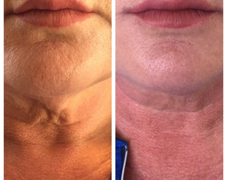 Skin tightening with Radiesse