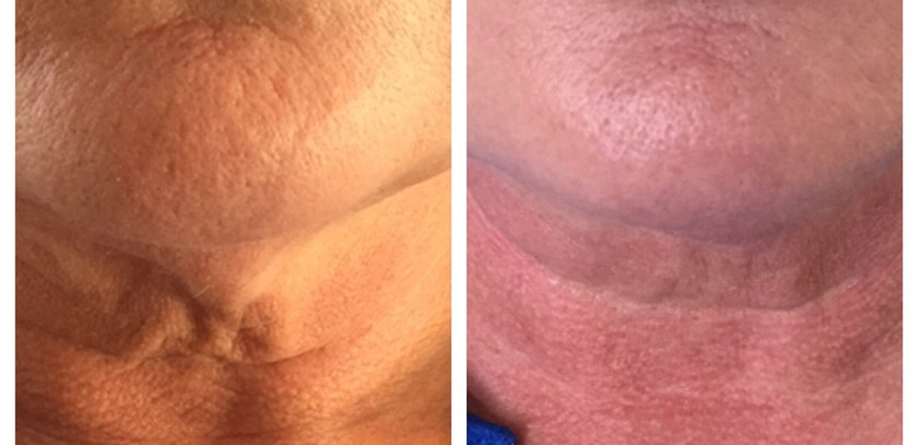Skin tightening with Radiesse