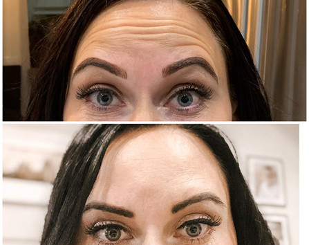 Xeomin for forehead lines